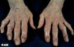 Tổn thương viêm khớp dạng thấp bàn tay là những nguyên nhân gây đau kiểu viêm.